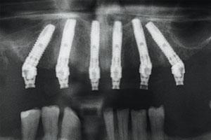 IDI4 - Visione radiologica